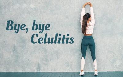 ¡Bye, bye celulitis! 5 consejos para combatirla